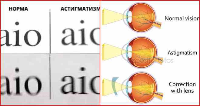 Что такое пересчёт астигматических линз и зачем он нужен