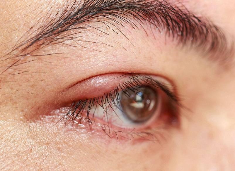 Внутренний ячмень на глазу - причины и лечение