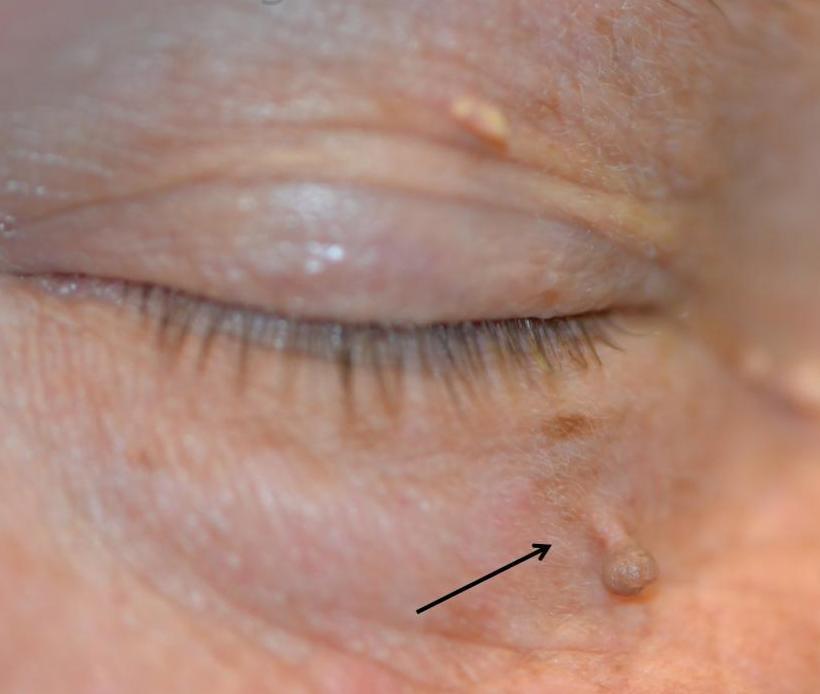 Папиллома на глазу - причины и симптомы возникновения, способы удаления