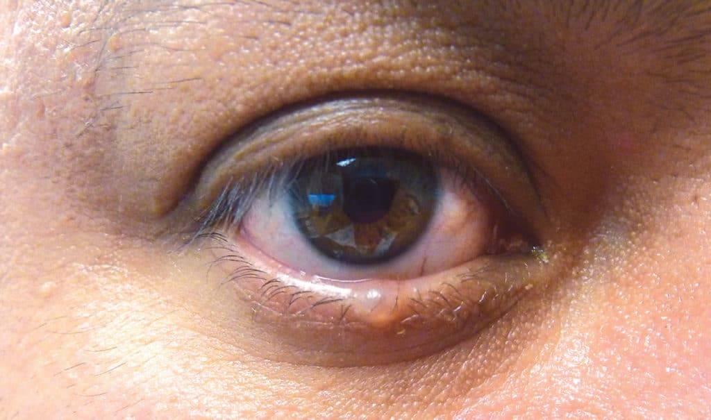 Растут ли глаза у человека, что происходит с возрастом
