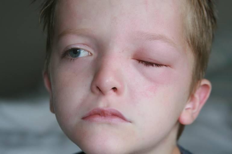 Глаз покраснел и болит: первая помощь при покраснении