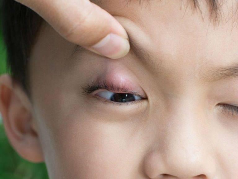 Ячмень у ребенка: чем правильно и безопасно лечить