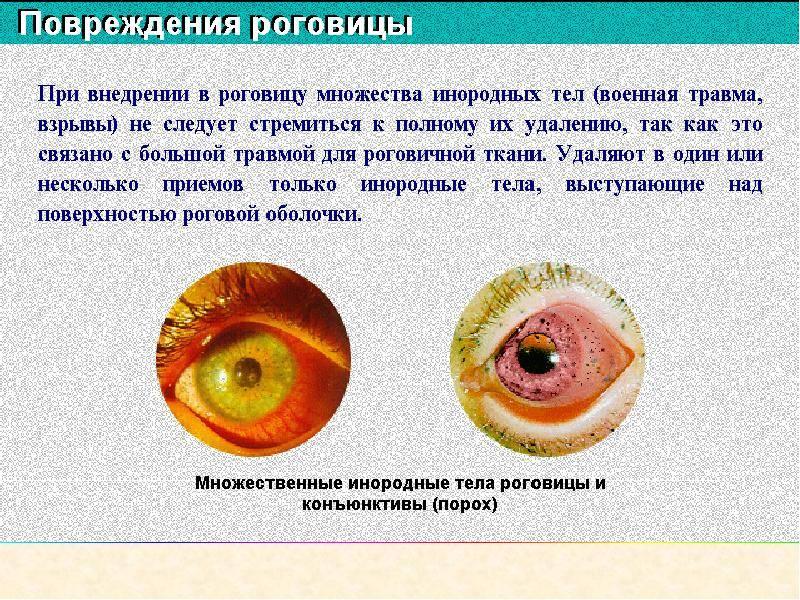 Роговица глаза: повреждения, лечение, препараты для терапии, глазные капли, возможные последствия при травме