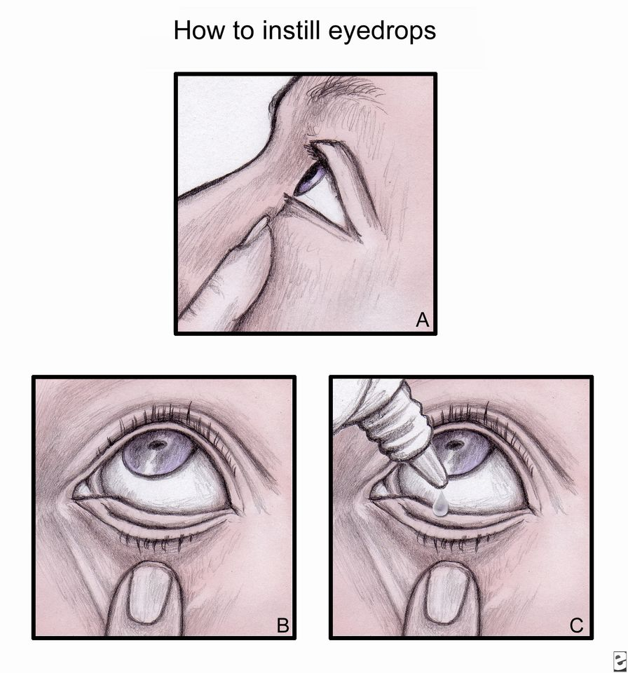 Как закладывать тетрациклиновую мазь за верхнее веко. как закладывать мазь в глаза — безопасный способ