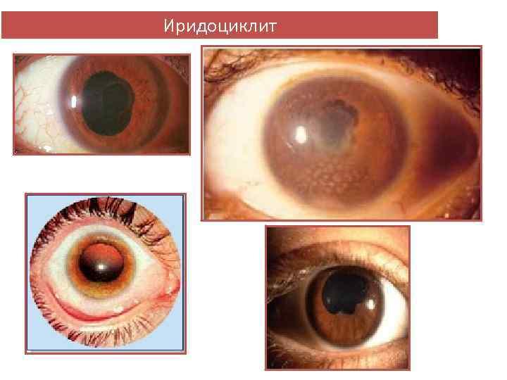 Иридоциклит глаза