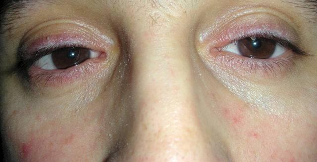 Что такое блефароконъюнктивит? причины, симптомы и лечение