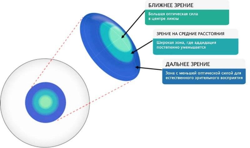 Мультифокальные контактные линзы, как метод торможения прогрессирования близорукости | ochki.com
