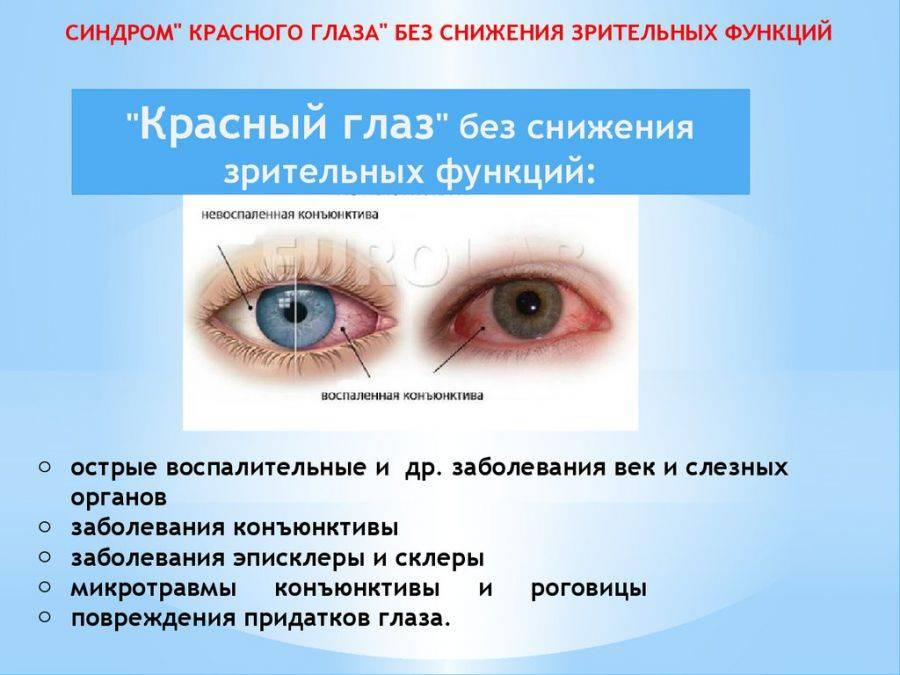 Синдром сухого глаза: понятие, причины и развитие, проявления и течение, диагностика, терапия