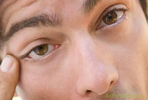 Фасцикуляции и спазмы мышц (миокимия века и лицевая, миопатия и другие): симптомы, лечение - умный врач