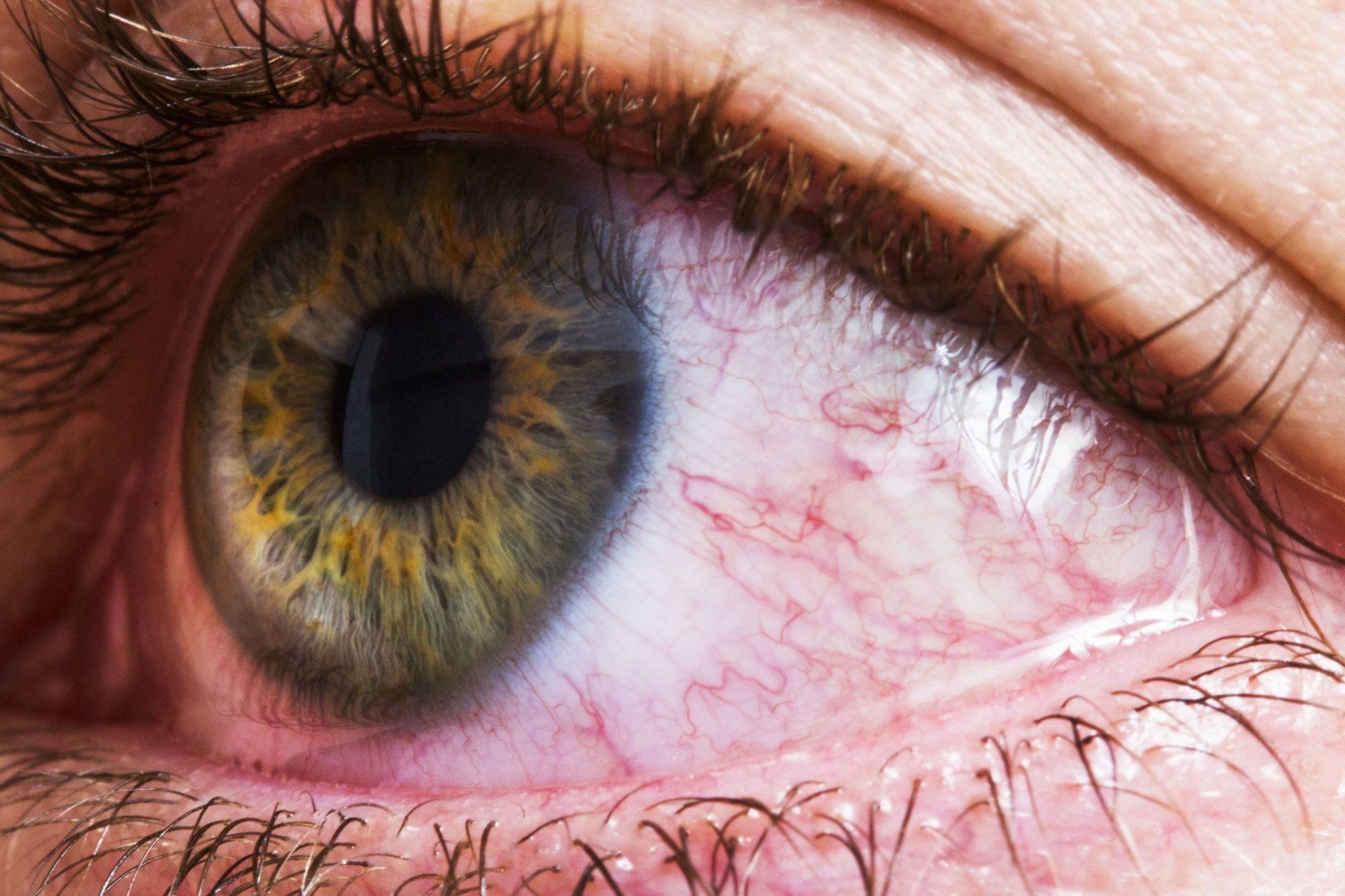 Лопнул сосуд (капилляр) в глазу: причины и лечение, что делать?