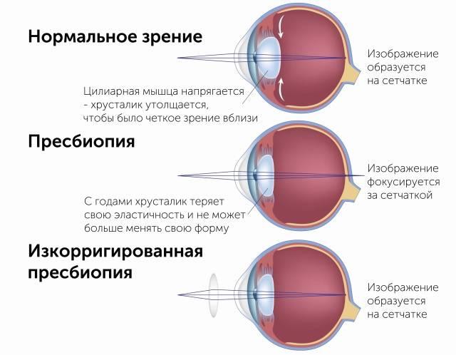 Ахроматопсия (ахромазия): что это такое и в чем разница