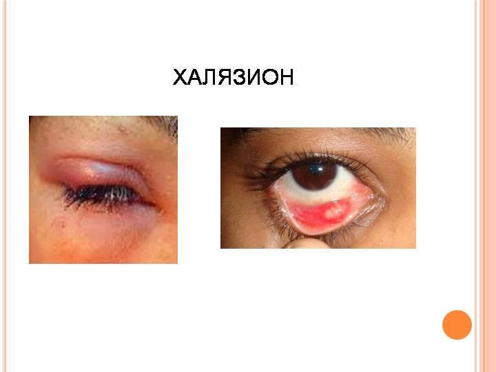 Халязион: лечение народными средствами века без операций в домашних условиях (алоэ, лук)