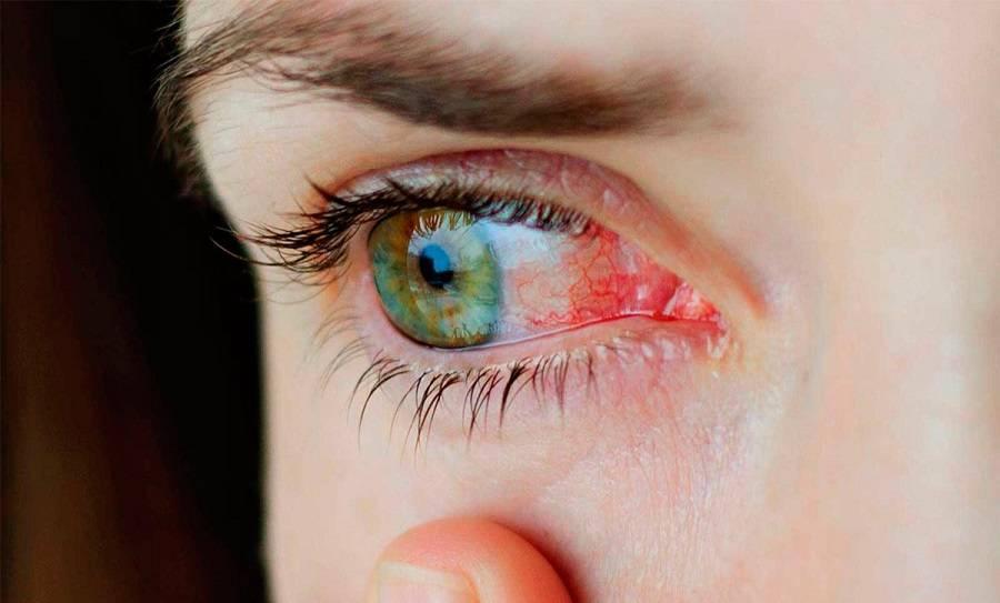 У ребенка под глазами красные круги - почему краснота и розовые пятна: комаровский о покраснениях, причины