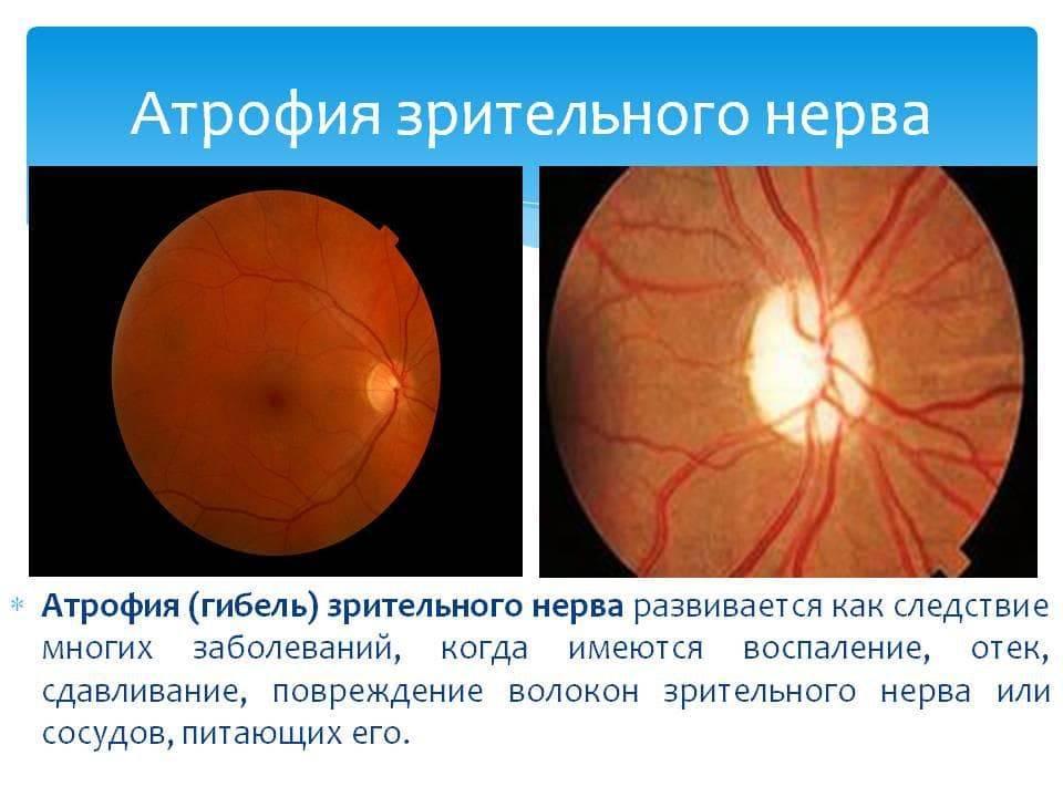 Нисходящая атрофия зрительного нерва: полная или частичная дегенерация нервных волокон приводит к инвалидности