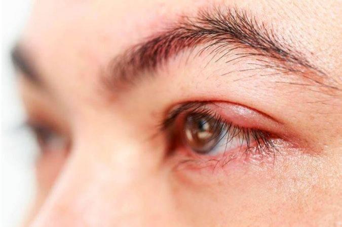 Мазь левомеколь от ячменя на глазу