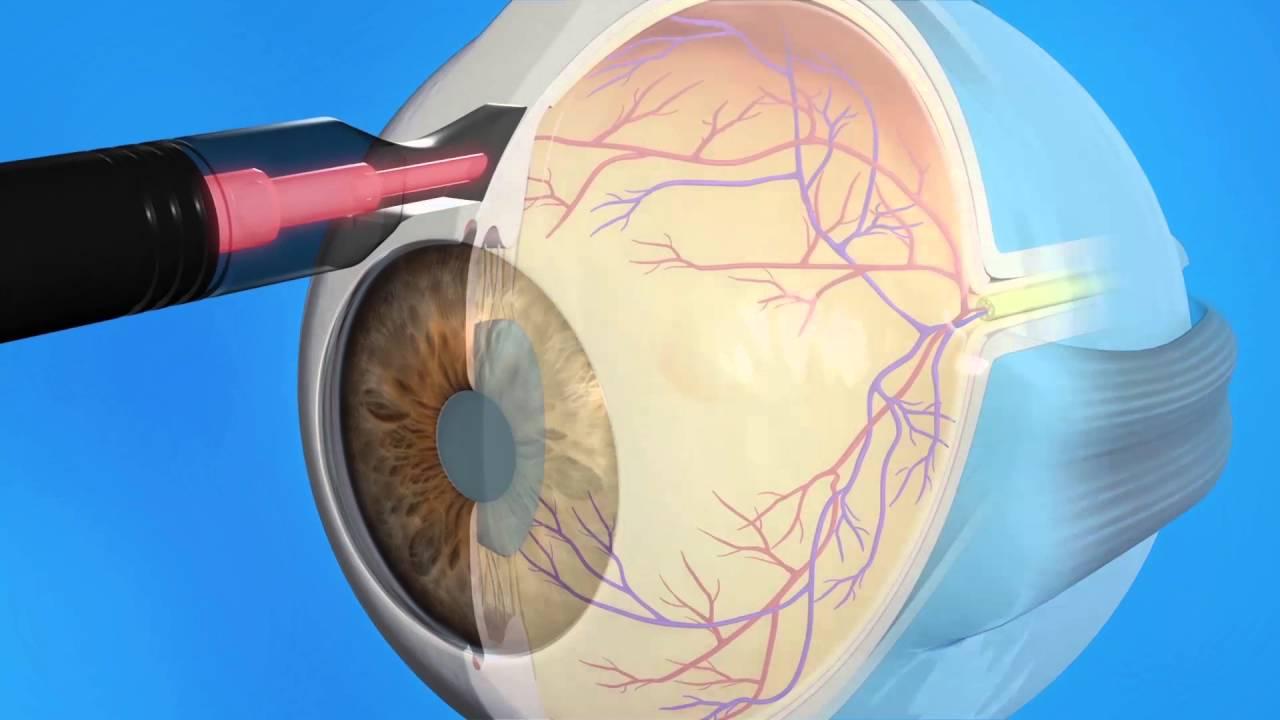 Лазерная иридэктомия (иридотомия)