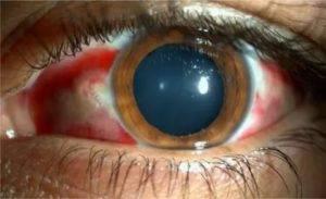 Причины боли внутри глазного яблока, лечение, профилактика