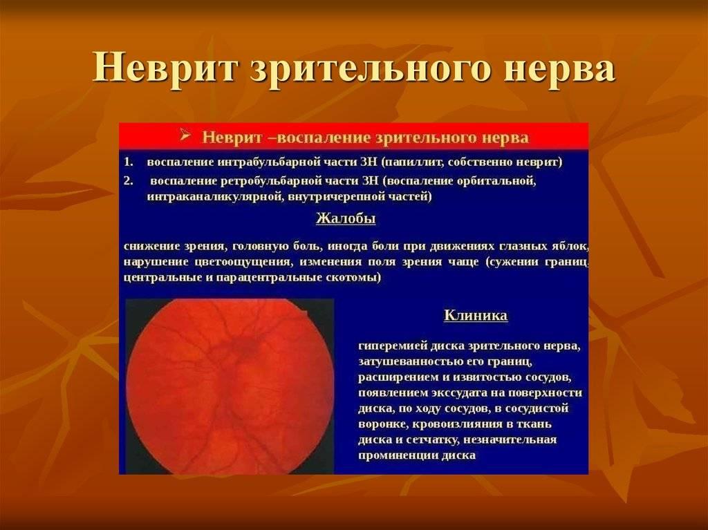 Неврит зрительного нерва | мнтк «микрохирургия глаза» им. акад. с.н. федорова