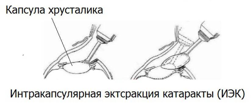 Экстракция катаракты (экстракапсулярная, интракапсулярная) с имплантацией иол