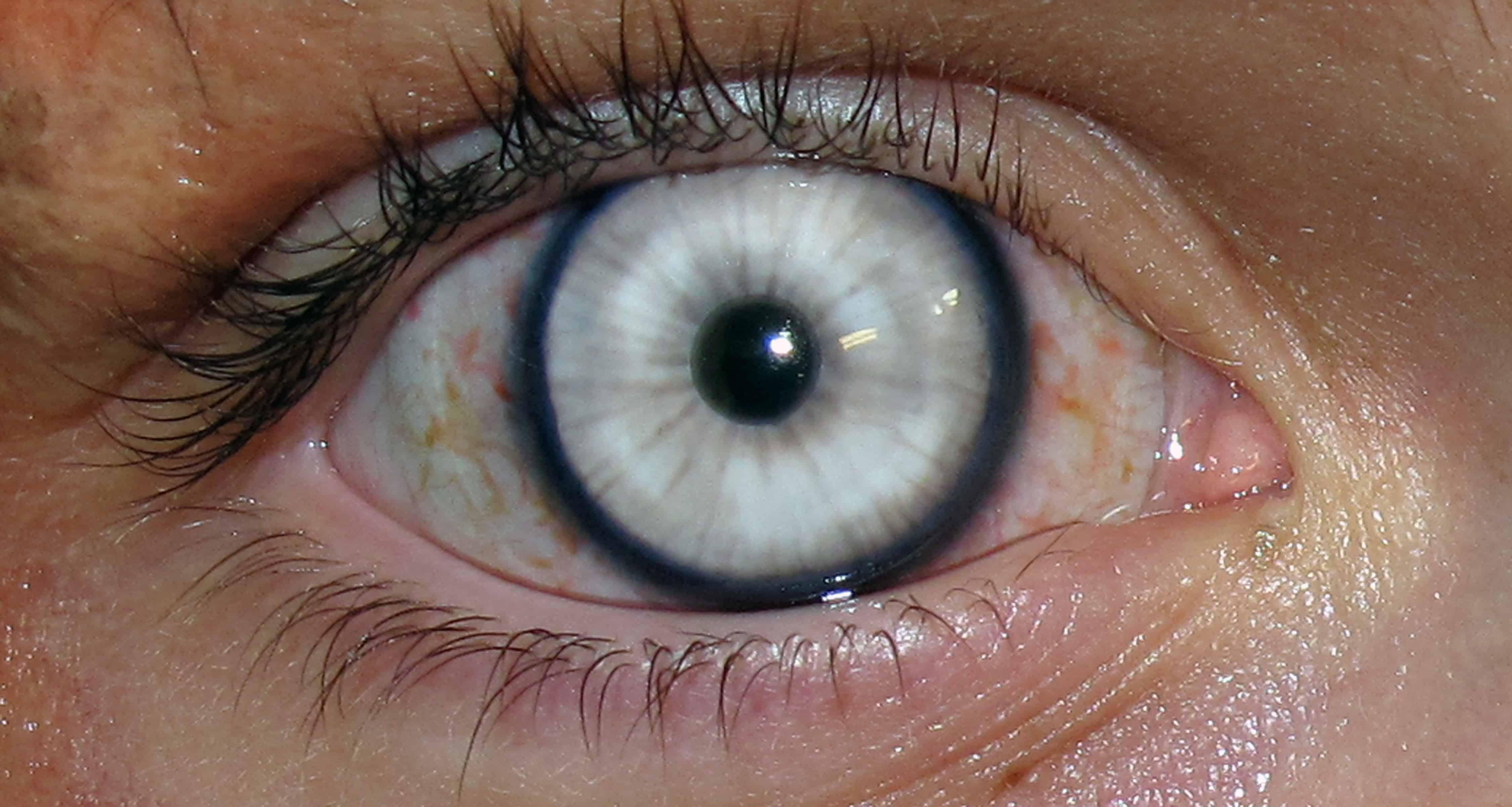 Бельмо на глазу у человека – причины, симптомы и лечение
