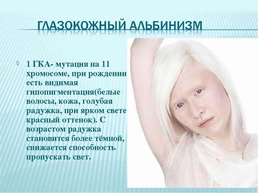 Альбинизм, причины, генетика, лечение