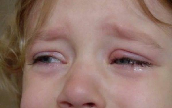 Почему у ребенка слезятся глаза и что делать? | компетентно о здоровье на ilive
