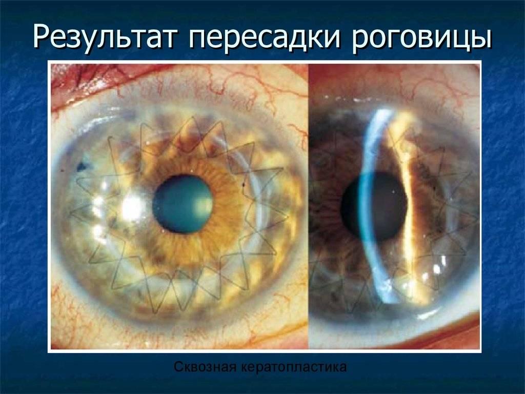 Процесс проведения кератопластики роговицы глаза, ее показания