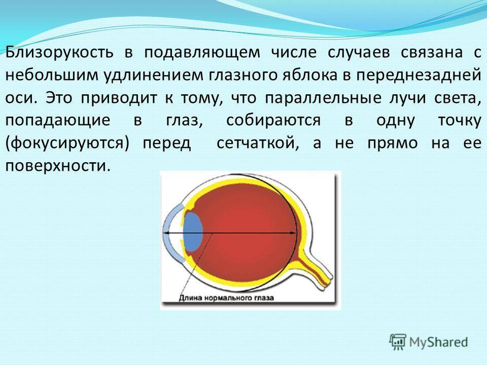 Близорукость - это минус или плюс зрения, очки с какими диоптриями нужно выбирать при миопии, а какие при дальнозоркости