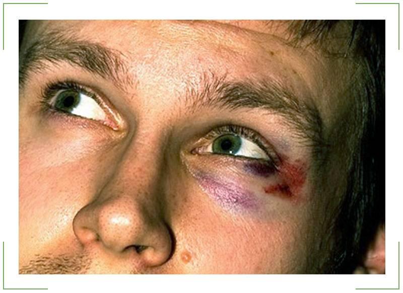 Ушиб глазного яблока - симптомы травмы и методы лечения
