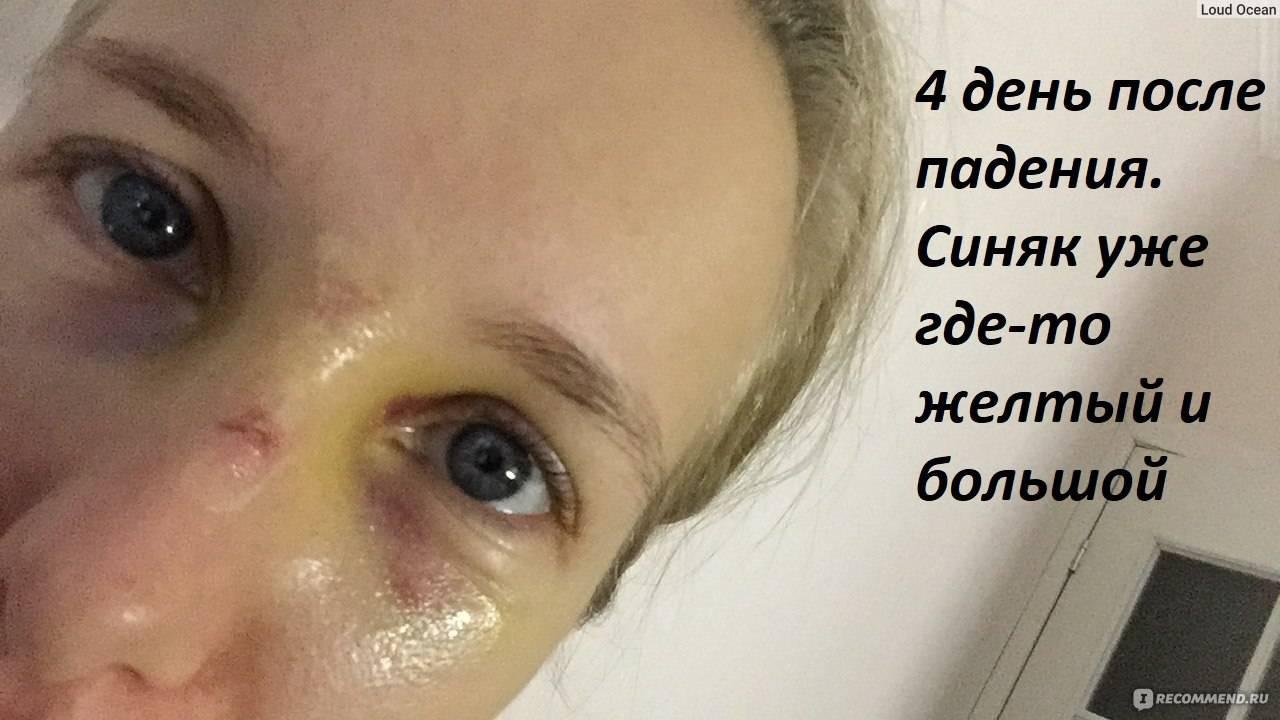 Сколько проходит синяк под глазом от удара