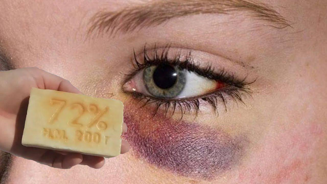 Как быстро убрать синяк под глазом и на теле в домашних условиях? :: polismed.com