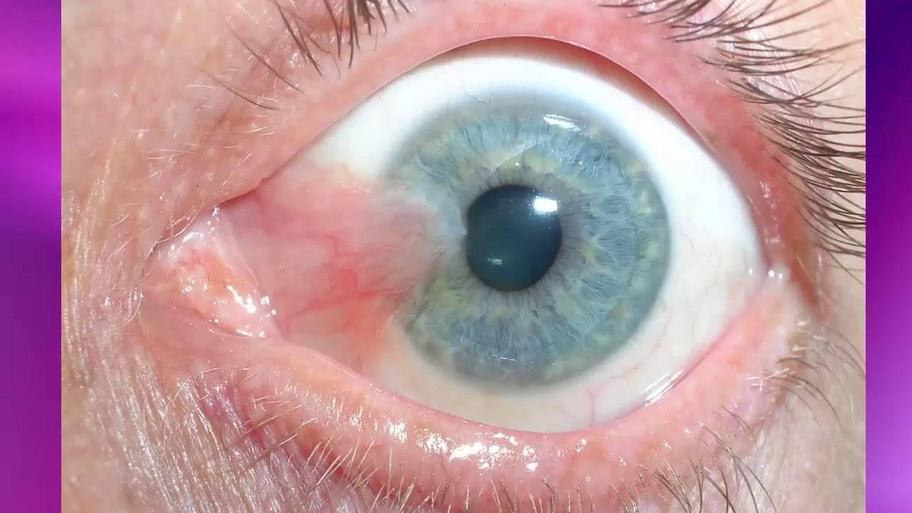 Птеригиум: причины, симптомы, диагностика, лечение, осложнения