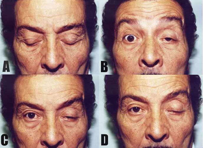 Миопатия: типы заболевания, причины, проявления