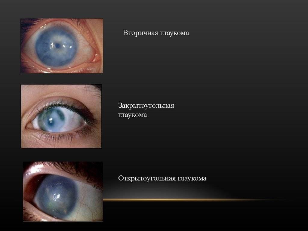 """Закрытоугольная глаукома: симптомы, причины - """"здоровое око"""""""
