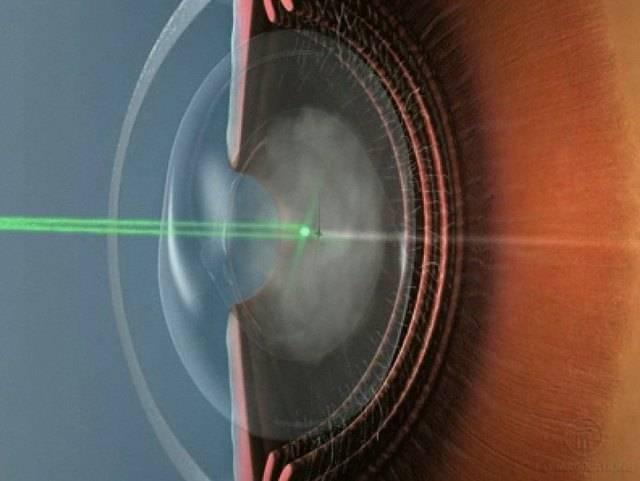 После удаления катаракты видно края линзы