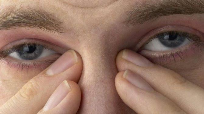 Песок в глазах (ощущение песка в глазах): причины и лечение