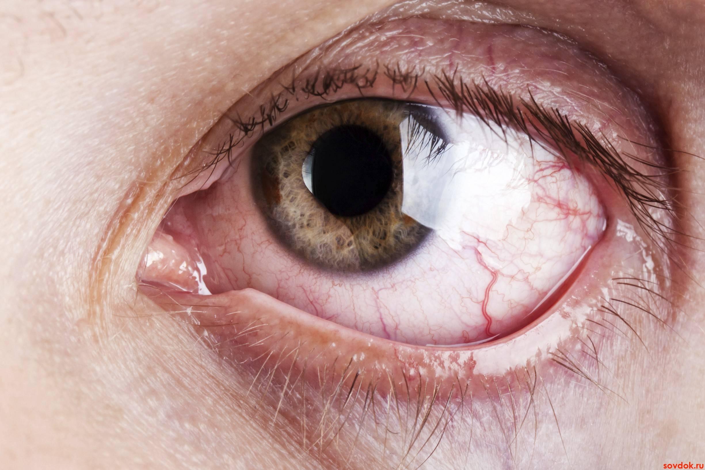 Лечение и последствия ожога роговицы глаза