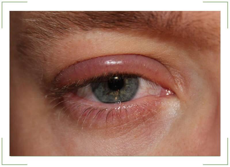 Покраснение век глаз - причины и лечение