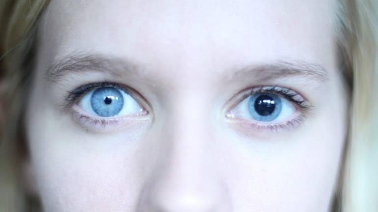 Разные зрачки по размеру у взрослого: причины, лечение анизокории у ребенка