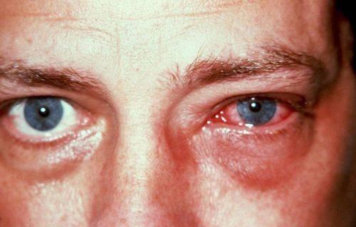 Ожог роговицы глаза: термический, химический, лучевой