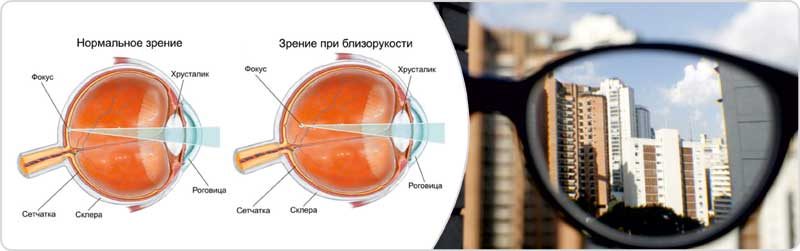 Монокулярное зрение