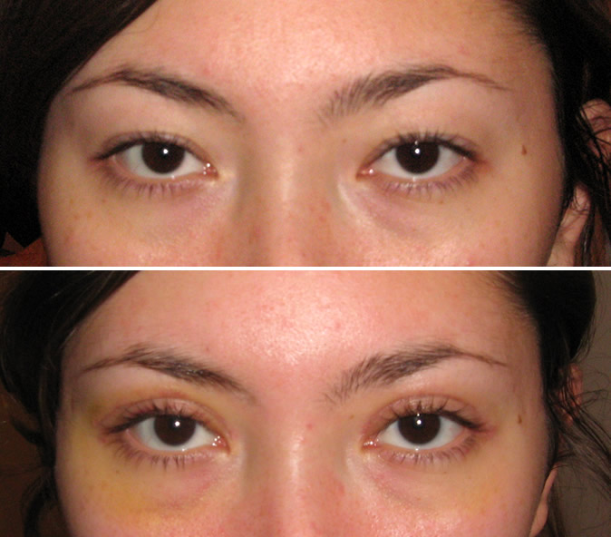 Кантопластика разреза глаз