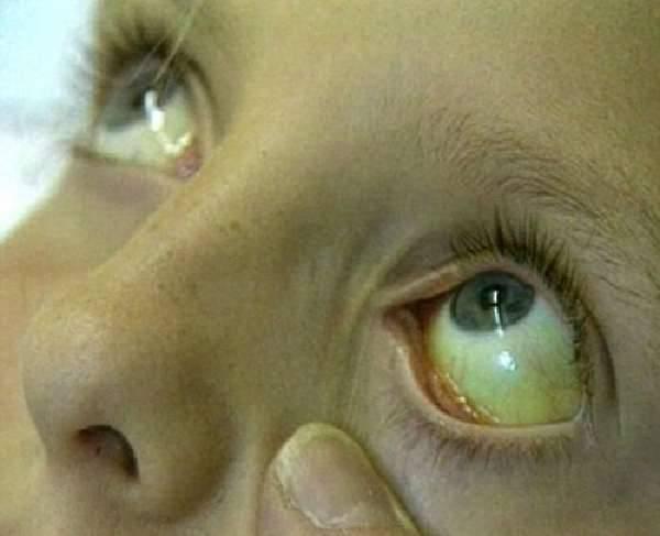 Глаза у новорожденного ребенка: норма и патология