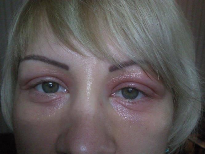 Отек нижнего века одного глаза: причины проявления и препараты для лечения