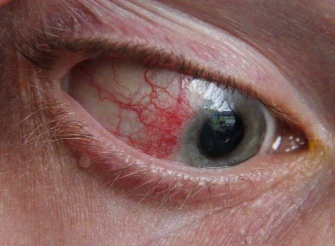 Чем характеризуется вирусный конъюнктивит, симптомы и лечение