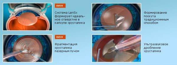 Послеоперационный период после замены хрусталика при катаракте