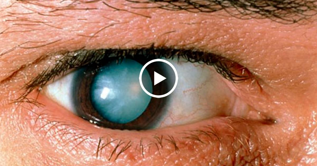 Мутно видит глаз после замены хрусталика и другие осложнения oculistic.ru мутно видит глаз после замены хрусталика и другие осложнения