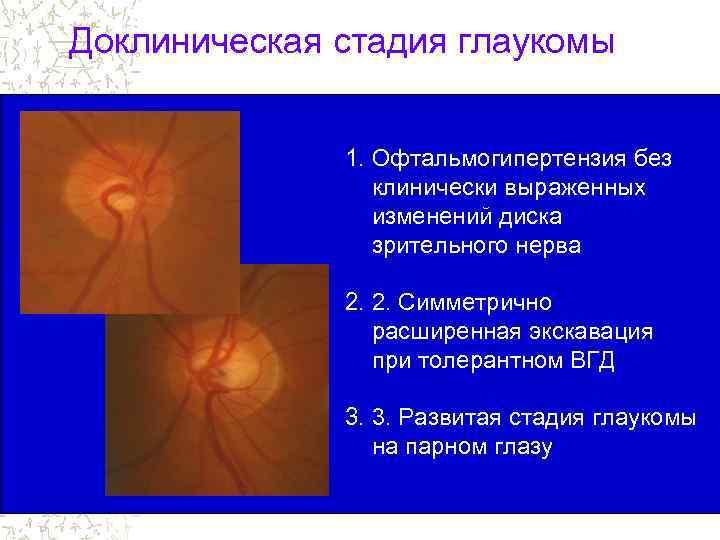 Офтальмогипертензия - что это, причины, симптомы и лечение