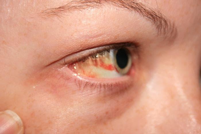 Простуда на глазу - простудные заболевания