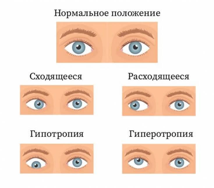 """Альтернирующее косоглазие: причины, симптомы - """"здоровое око"""""""